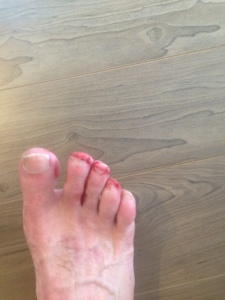 Bloody Toes